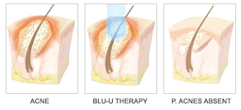Blu U Treatment