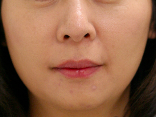 Face slimming03